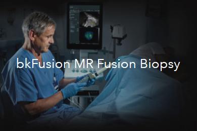 bk medical biopsy